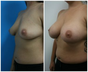 Breast Augmentation Results Los Angeles