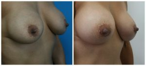 Best Breast Augmentation Los Angeles