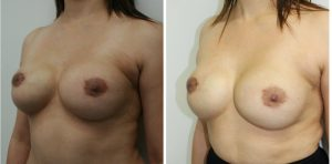 Breast Augmentation Photos Los Angeles