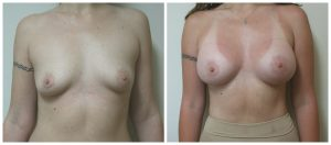 Breast Augmentation Picture Los Angeles