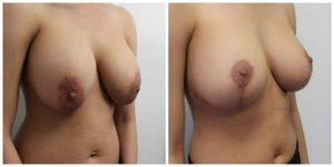 Breast Augmentation Operation Santa Monica