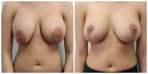 Breast Augmentation Procedure Santa Monica