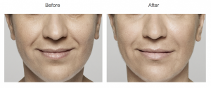 Restylane before and after treatment