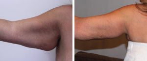Arm Lift Before and Afters