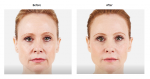 Before and after voluma treatment