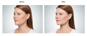 Kybella Treatment Before & After Younique