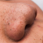Close up of blackheads on nose