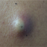 Close up of a cyst