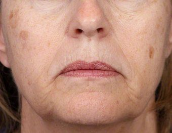 Women with liver spots