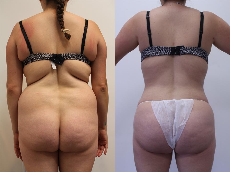 Case 11417 Brazillian Butt Lift Before & After