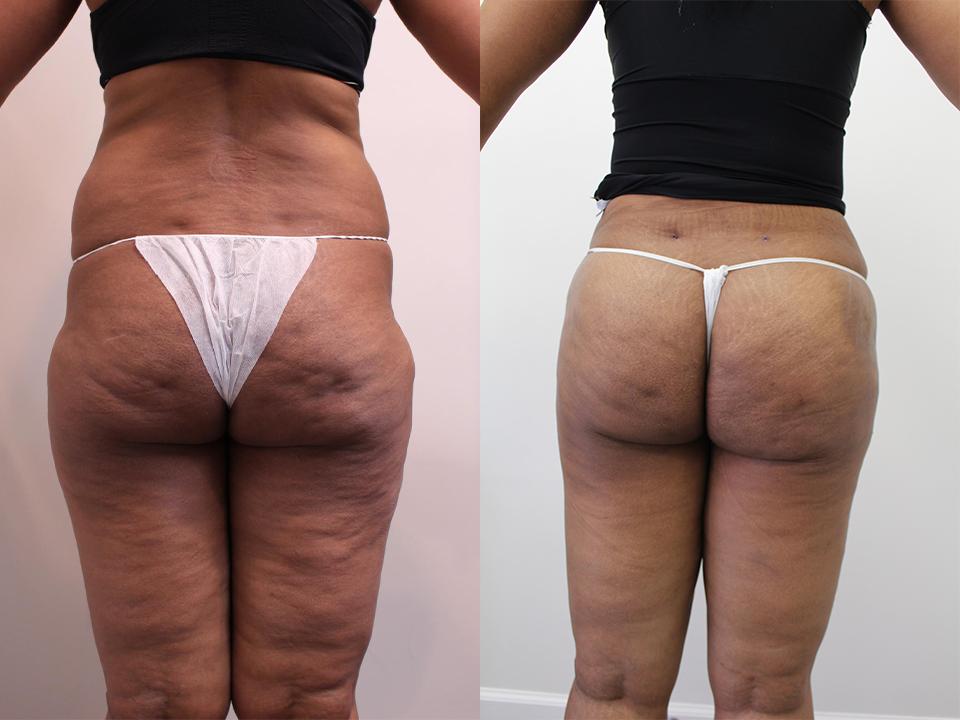 Case 14216 Brazillian Butt Lift Before & After