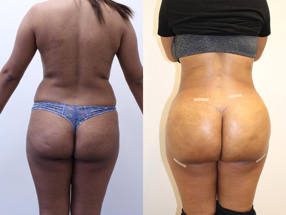 Case 15706 Brazillian Butt Lift Before & After