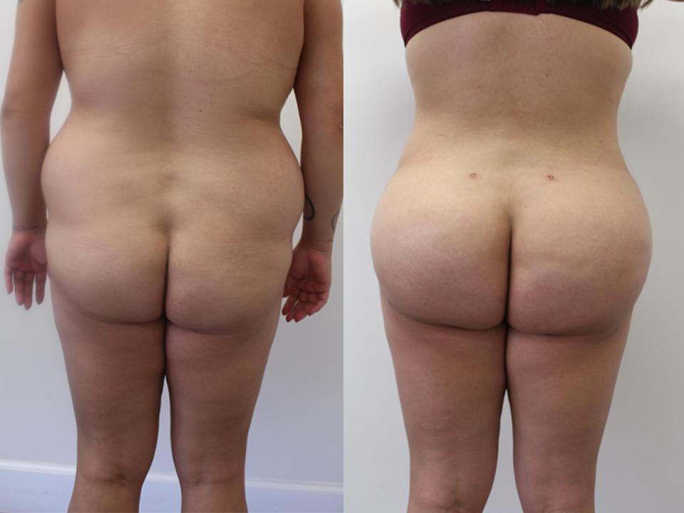 Case 16317 Brazillian Butt Lift Before & After