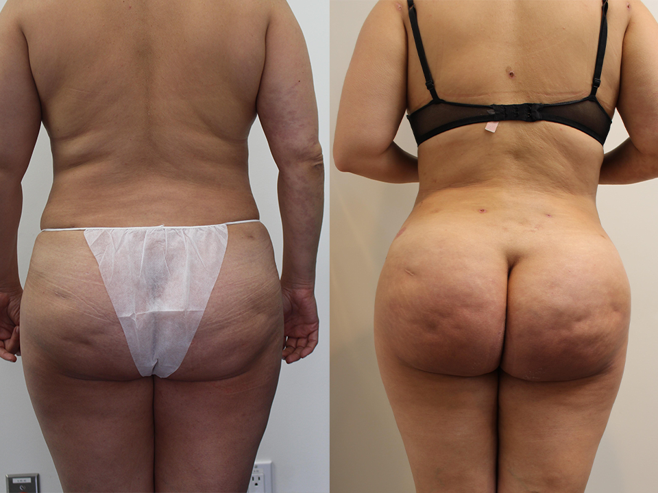 Case 16653 Brazillian Butt Lift Before & After