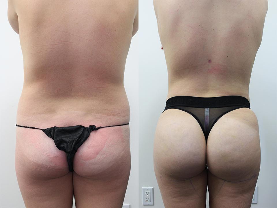 Case 17315 Brazillian Butt Lift Before & After