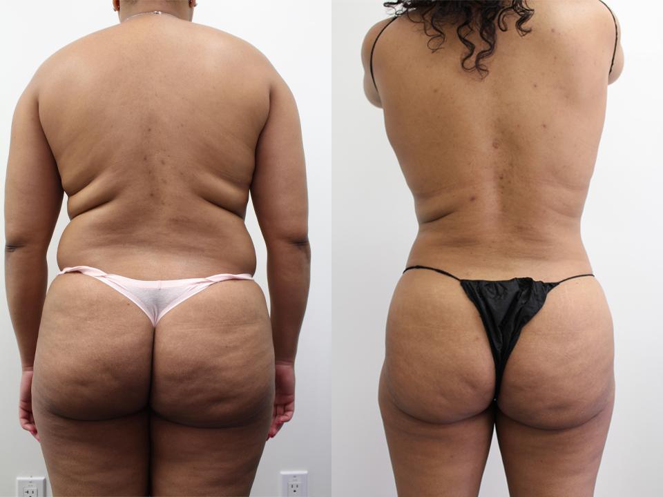 BBL & Liposuction Results Case 19225 Younique