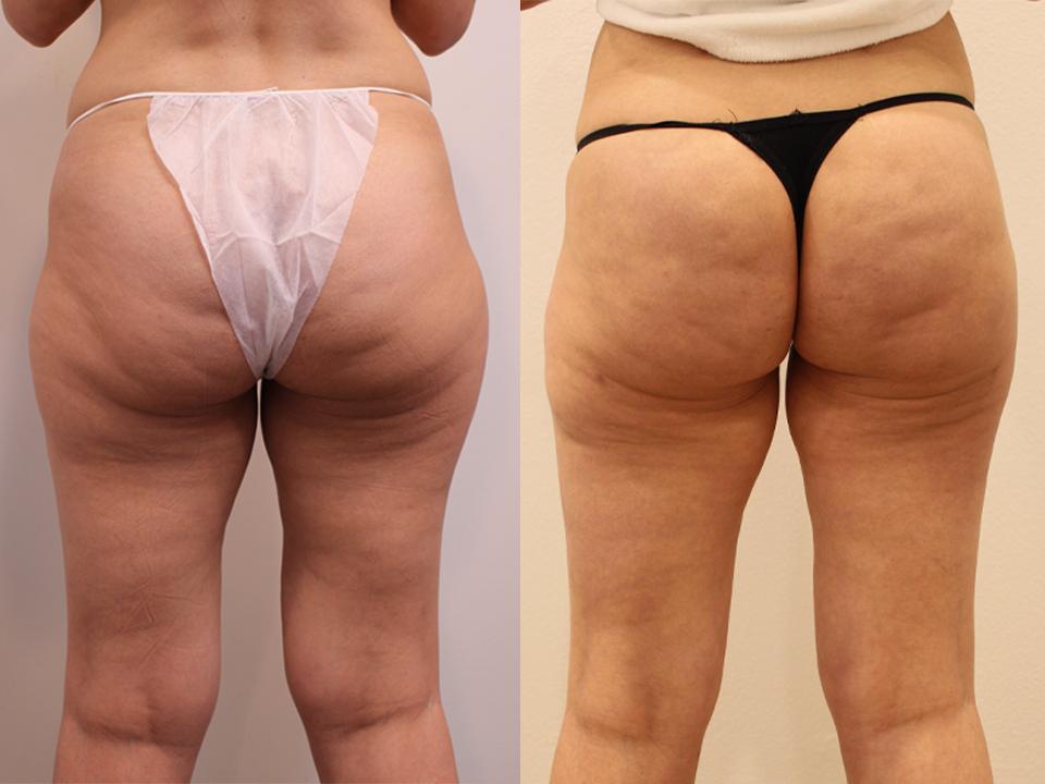 Case 5231 Brazillian Butt Lift Before & After