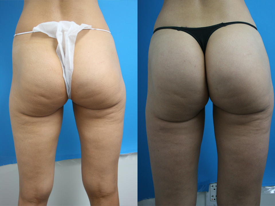 brazilian booty lift before and after