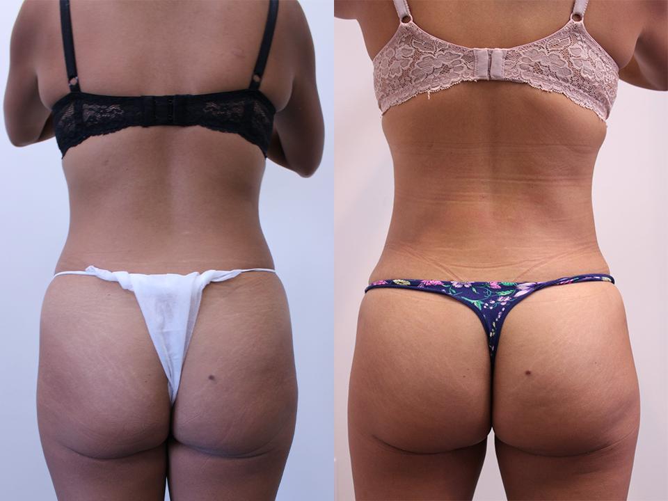 Case 895 Brazillian Butt Lift Before & After
