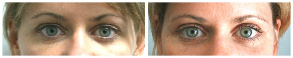 Blepharoplasty Before and After Pictures - Younique Case 3610