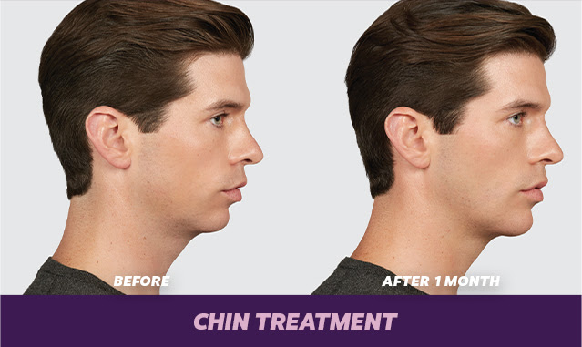 juvederm for chin for men