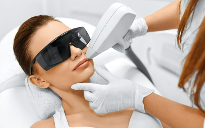 benfits of laser hair removal on face