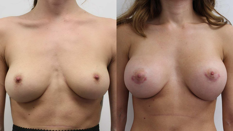 Case 11190 Younique Before & After Breast Augmentation