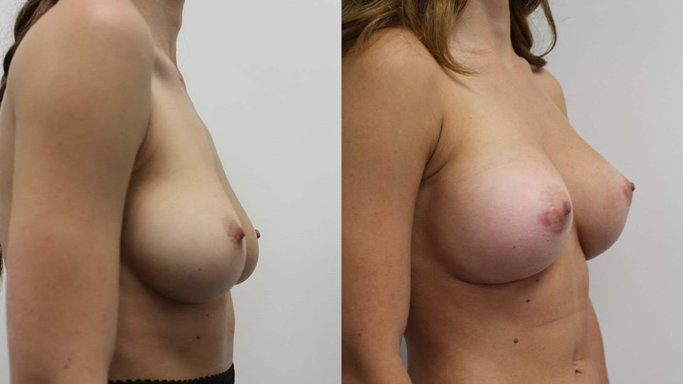 Before and After Breast Augmentation Side: Case 11190