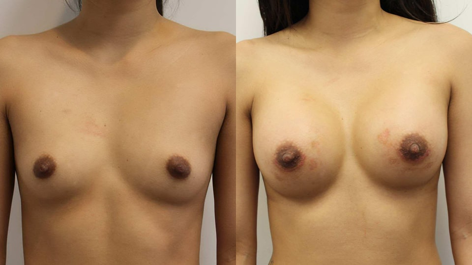 Before and After Breast Augmentation: Case 11252 Younique