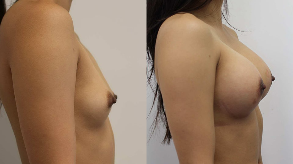 Los Angeles Breast Augmentation Case 11252