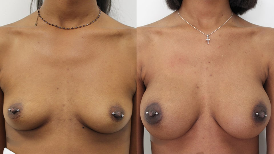 Younique Case 11924 Breast Augmentation Los Angeles