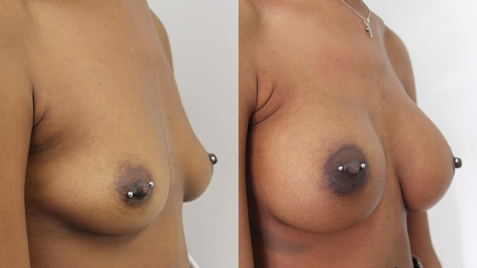 Younique Case 11924 Breast Augmentation Before & After Side - Los Angeles