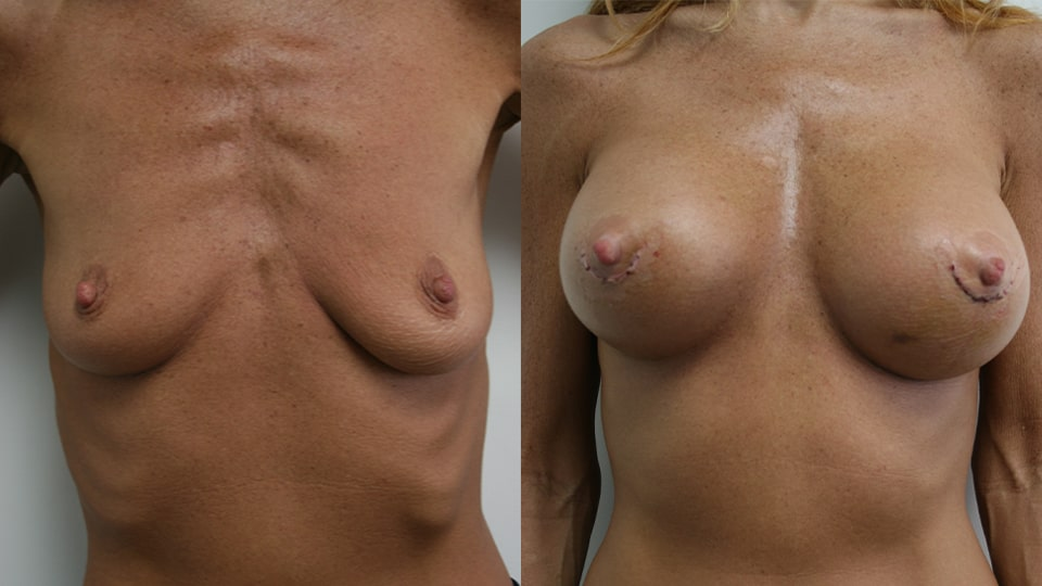 Case 1344 Younique Before & After Breast Augmentation