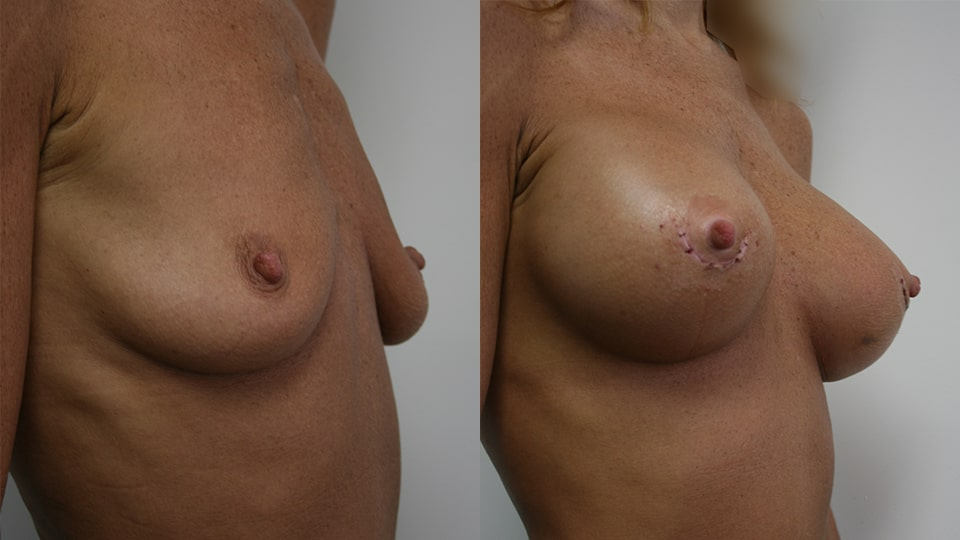 Case 1344 Younique Before & After Breast Augmentation Side
