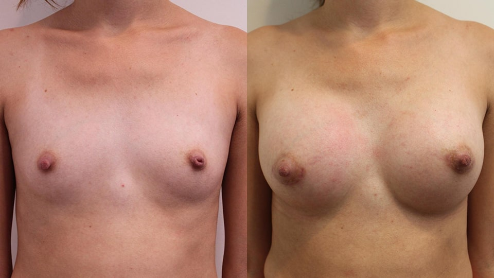 Breast Augmentation Los Angeles Before & After: Case 14327