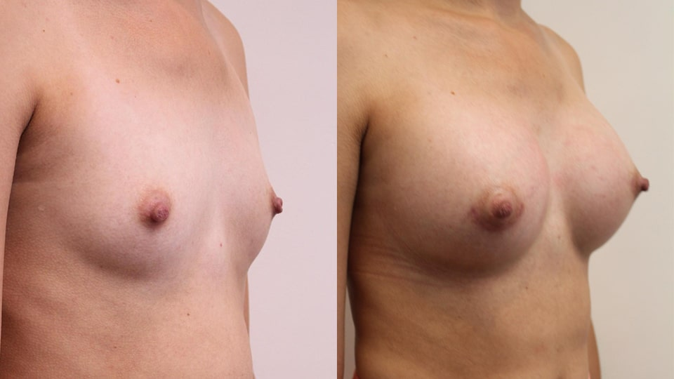 Before and After Breast Augmentation Side: Case 14327
