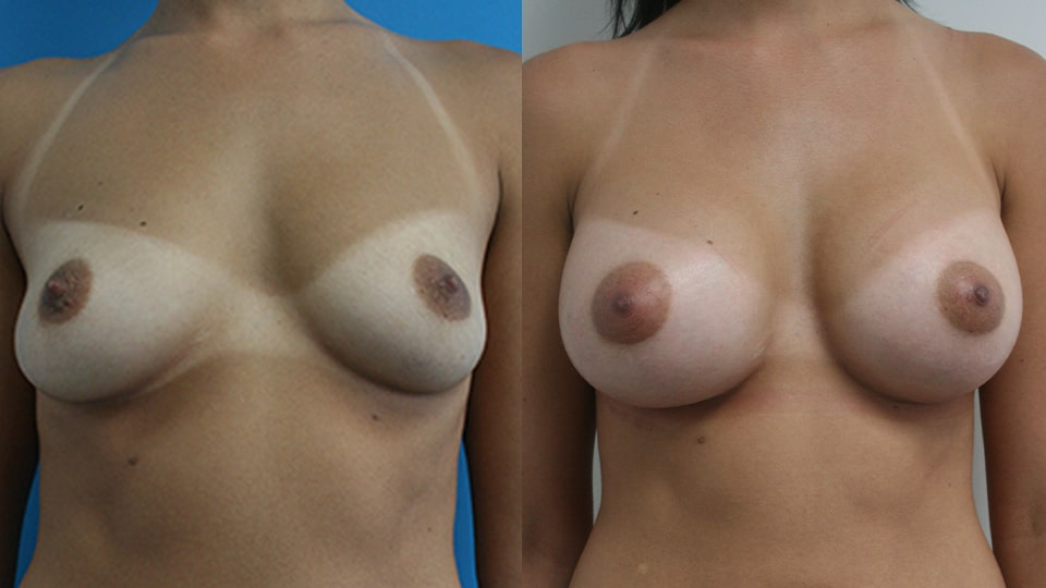 Case 1487 Breast Augmentation Before & After Los Angeles