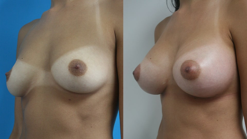 Before and After Breast Augmentation Side: Case 1487 Younique