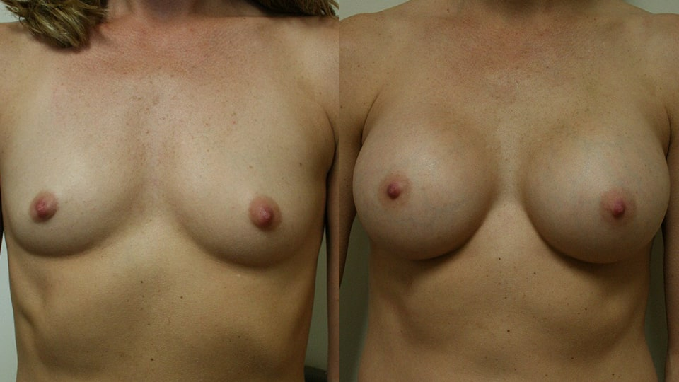 Before and After Breast Augmentation: Case 1888 Younique