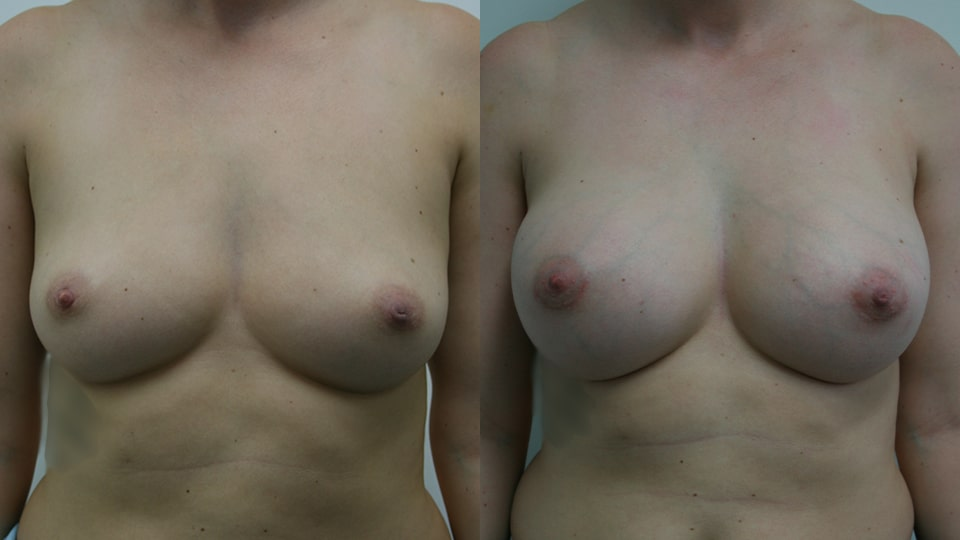 Before and After Breast Augmentation: Case 203 Younique