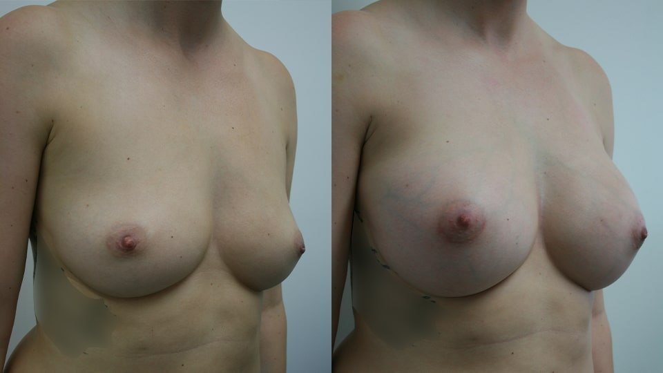 Before and After Breast Augmentation Side: Case 203 Younique