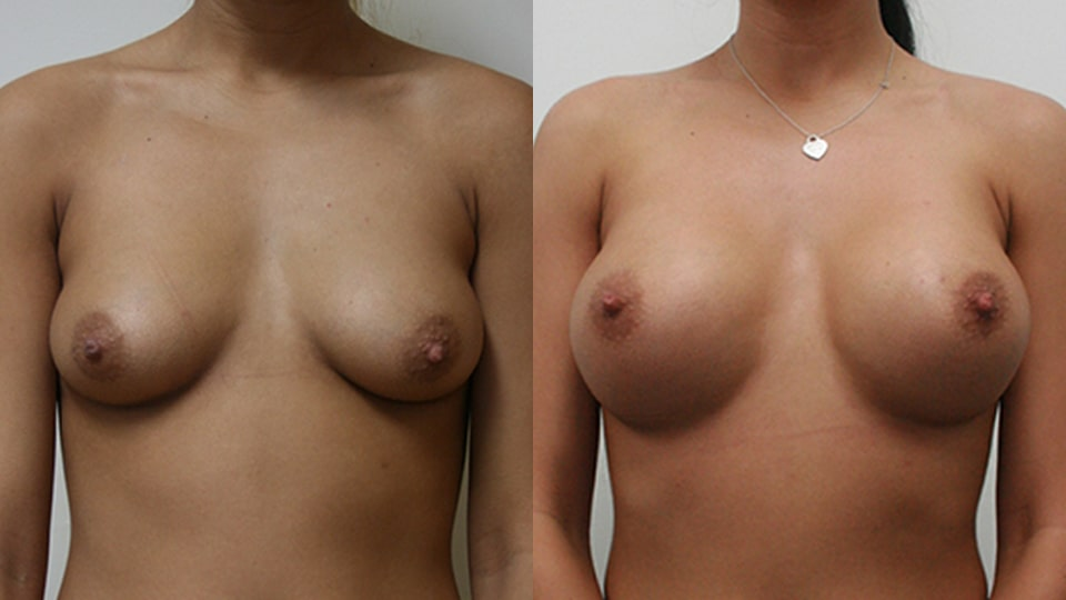 Case 2414 Breast Augmentation Younique Before & After