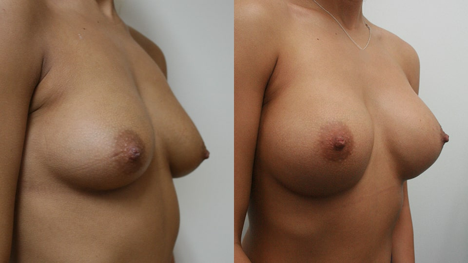 Case 2414 Breast Augmentation Younique Before & After Side