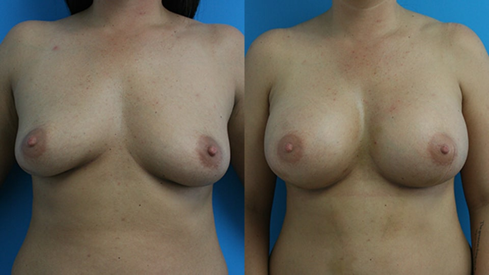 Before and After Breast Augmentation: Case 2574