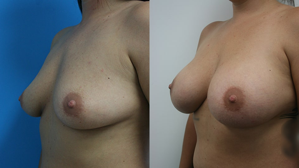 Before and After Breast Augmentation Side: Case 2574