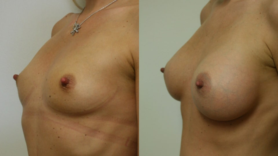 Case 3429 Younique Before & After Breast Augmentation Side in Los Angeles