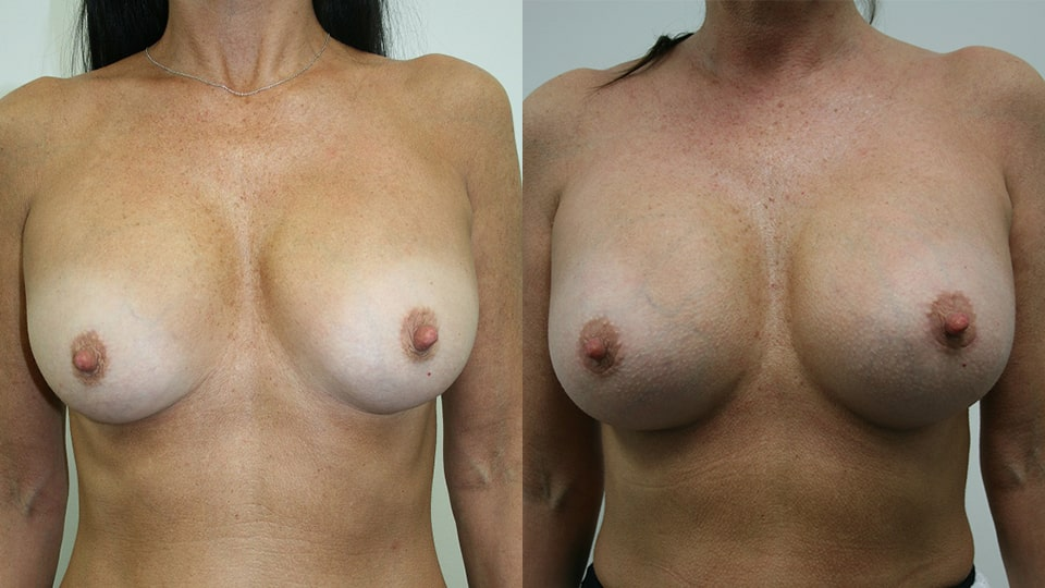 Before and After Younique Breast Augmentation: Case 7048