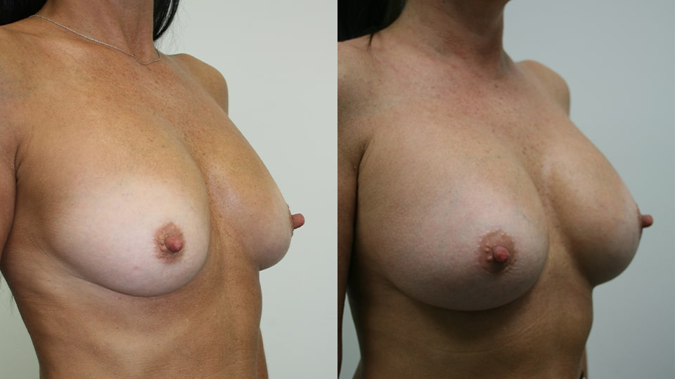 Before and After Younique Breast Augmentation Side: Case 7048