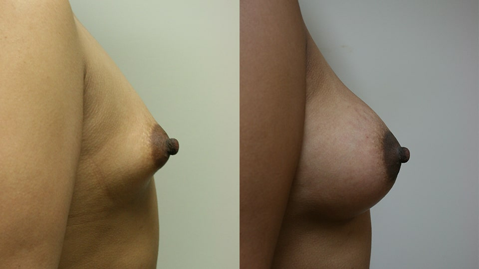 Case 9512 Younique Before & After Breast Augmentation Side