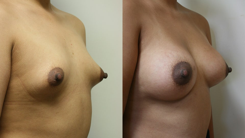 Case 9512 Younique Before & After Breast Augmentation Side 2